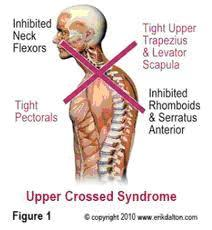 upper cross syndrome-2